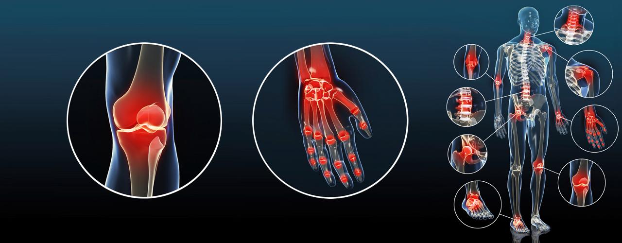 Orthokin-Arthrose-Ellbogen-Hand