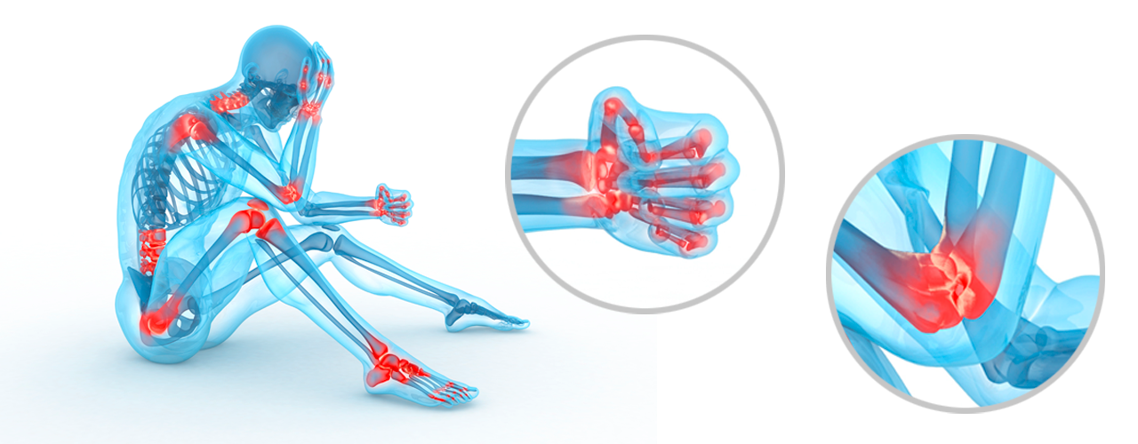 Orthokin Therapie Ellbogen und Hand