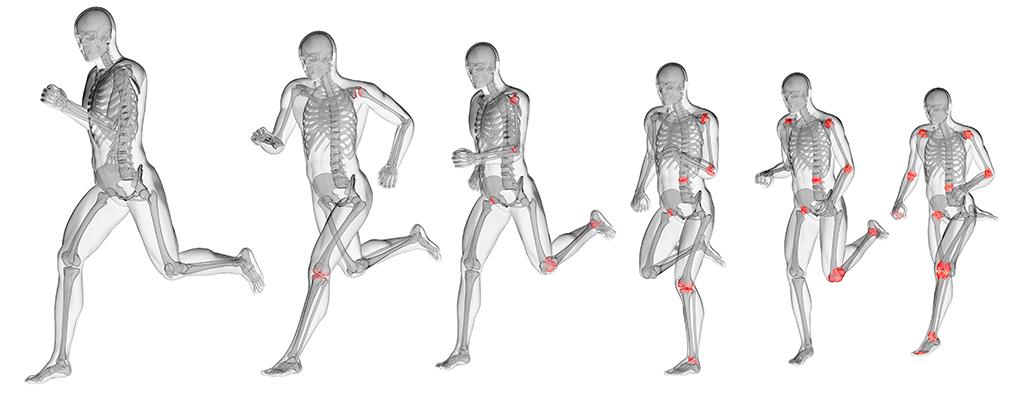 Läufer mit nachlassenden Schmerzen